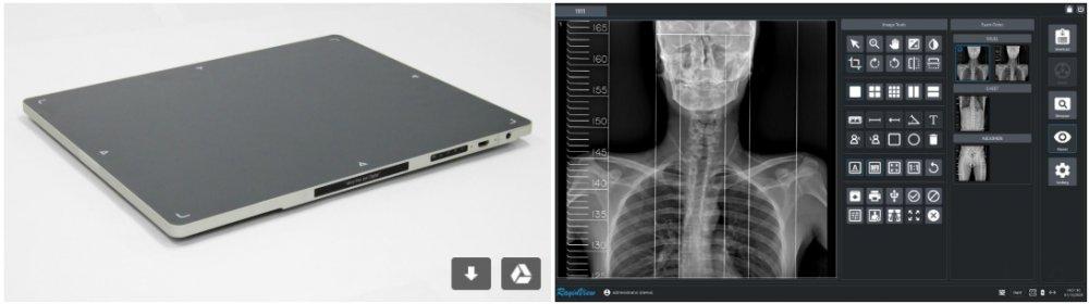 구매하기 DR x-ray flat panel Detector (DR System)