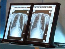Monitors for regenerative medicine