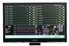 센트럴 모니터링 시스템 Central Monitor IP-9000